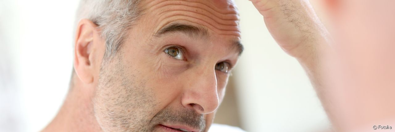 Guys: How to prevent hair loss